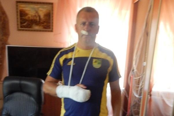 Власник відомого на Закарпатті готелю затримав озброєного грабіжника-рецидивіста