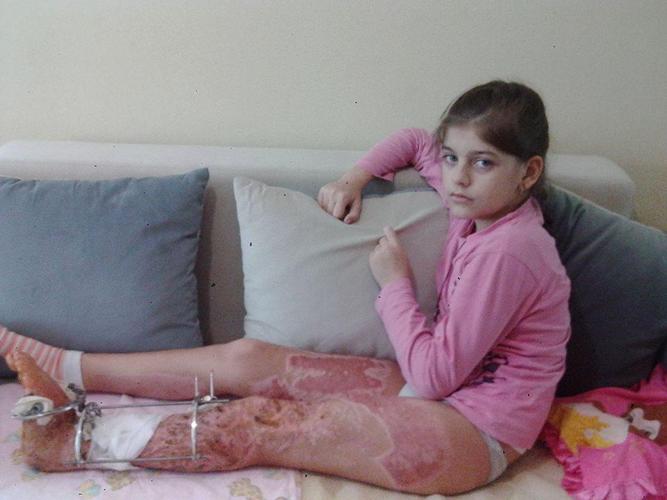 Відбудеться чергове засідання суду у справі про каліцтво ужгородськими комунальниками Анітки Білей