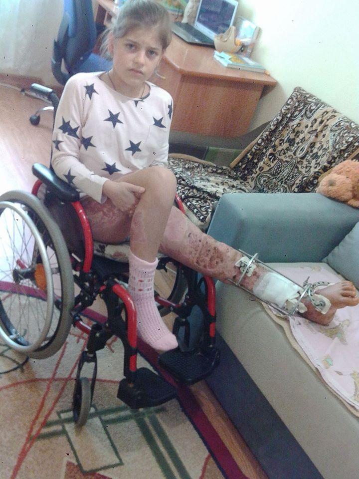 Ужгородка Аніта Білей продовжує потребувати допомоги небайдужих