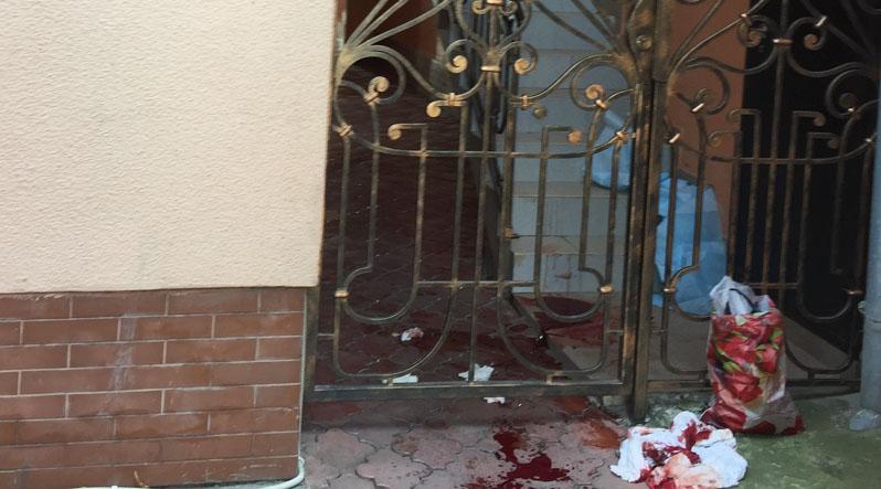 В Ужгороді чоловік поранився, перелізаючи через паркан і стік кров'ю