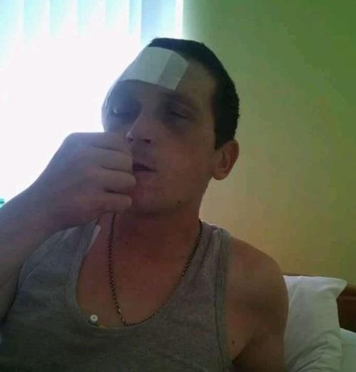 Осліплий боєць ужгородського батальйону просить про допомогу (фото)