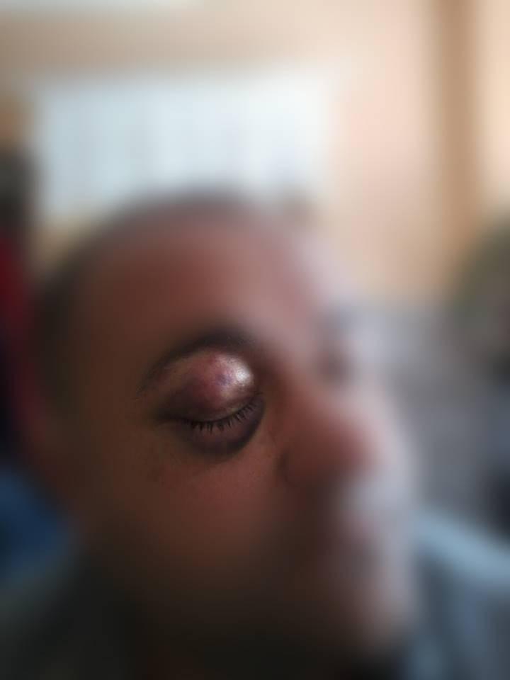 Лісова мафія Закарпаття замовила жорстоке побиття депутата Рахівської райради (фото)