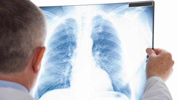 На Тячівщині побудують новий сучасний заклад з лікування туберкульозу