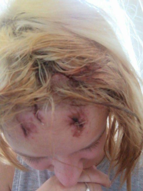 В Ужгороді роми розбили дівчині голову і відібрали 5000 гривень