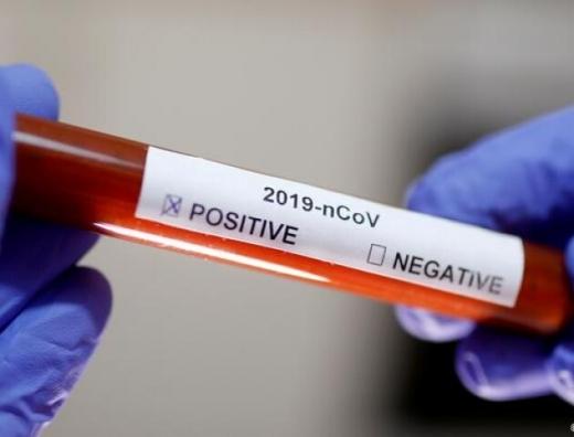 В Ужгороді за минулу добу виявлено 94 нові випадки коронавірусної інфекції, 5 людей померли